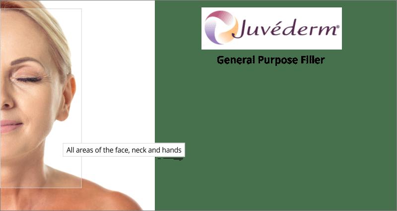 treatment areas juvederm