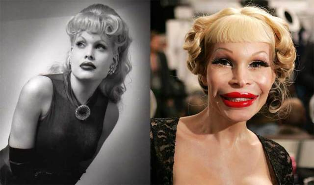 2-amanda-lepore-before-after