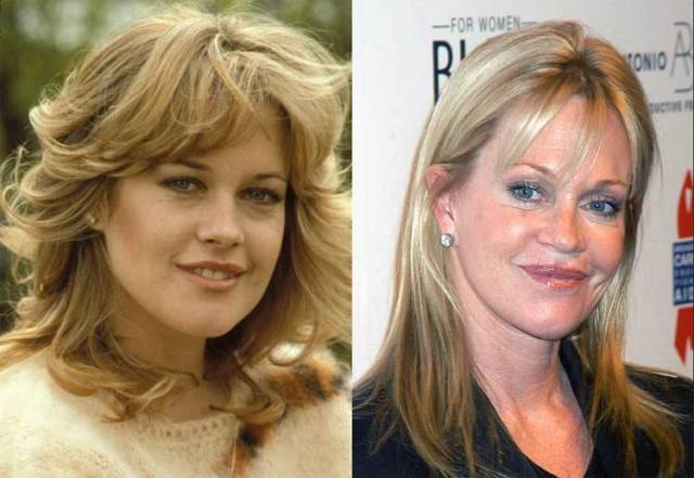 5-melanie-griffith-before-after