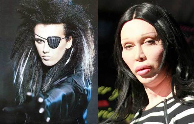 9-pete-burns-before-after
