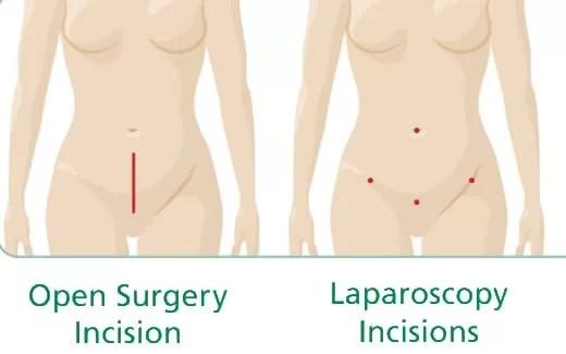 Perbedaan sayatan operasi laparoskopi dan operasi laparatomi