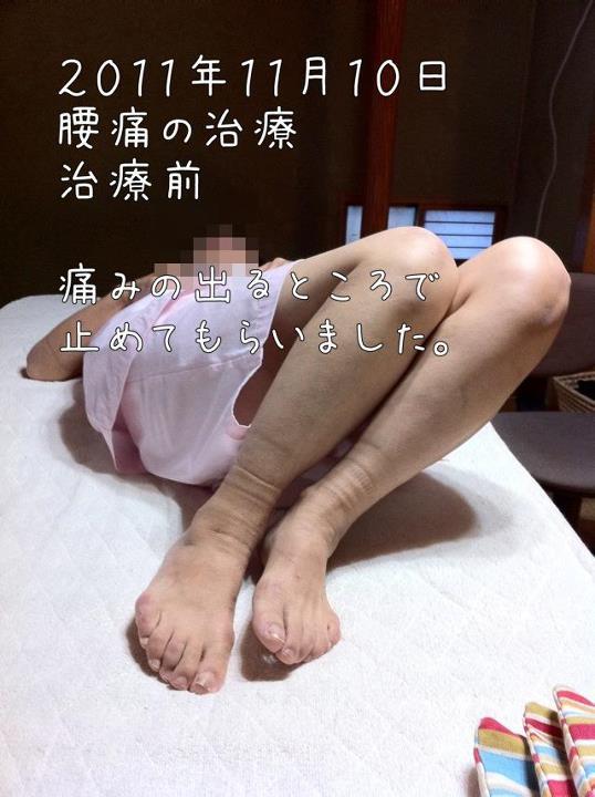 腰痛の治療(鍼治療に相当な決心をした患者さん)~福岡県福津市在住~