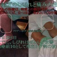 足のふくらはぎの痛みとしびれの改善と治療2012年7月福岡県宗像市在住