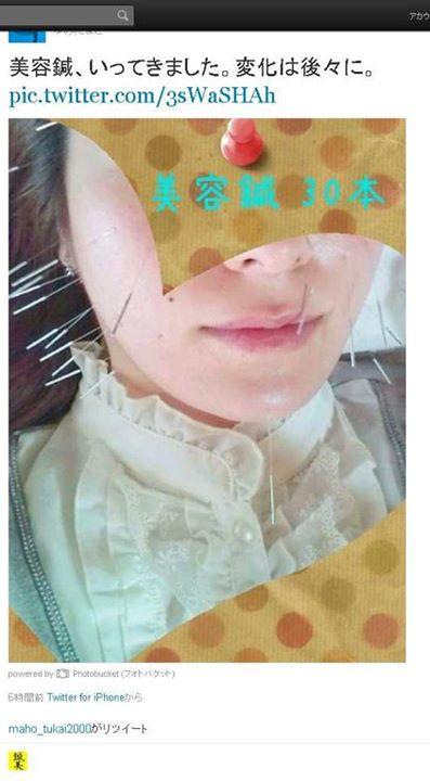 美容針行ってきました。変化は、後々に・・・|福岡県福津古賀北九州市