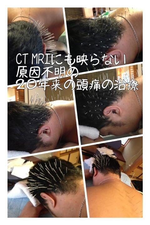 原因不明の偏頭痛