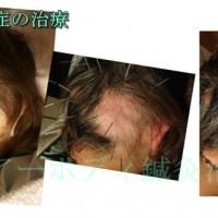 円形脱毛症の治療効果と見通しについて