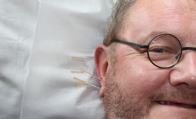 逆子・ぎっくり腰・片頭痛の東洋医学(ツボ)での治し方