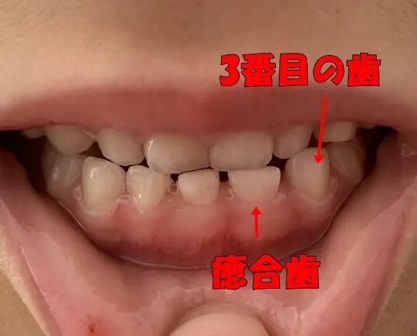 癒合歯 5歳の前歯写真