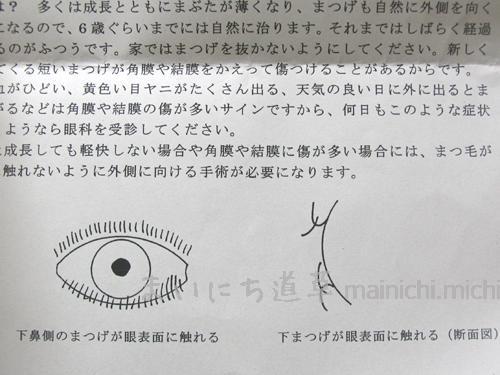 娘1歳7ヶ月が、目やにで眼科を受診|逆さまつげ