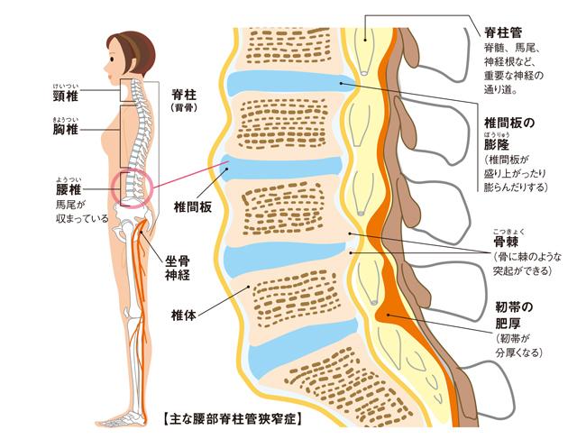 腰部脊柱管狹窄癥とは?大和市南林間 大原接骨院