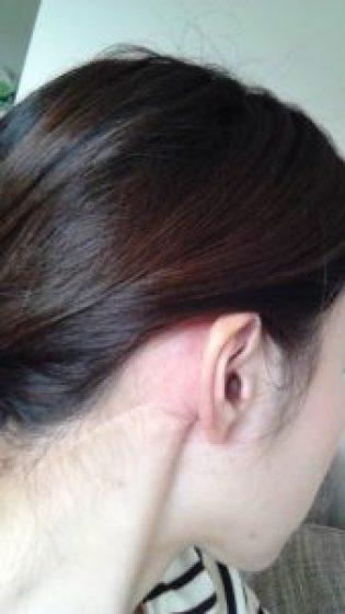 耳下腺腫瘍術後5年
