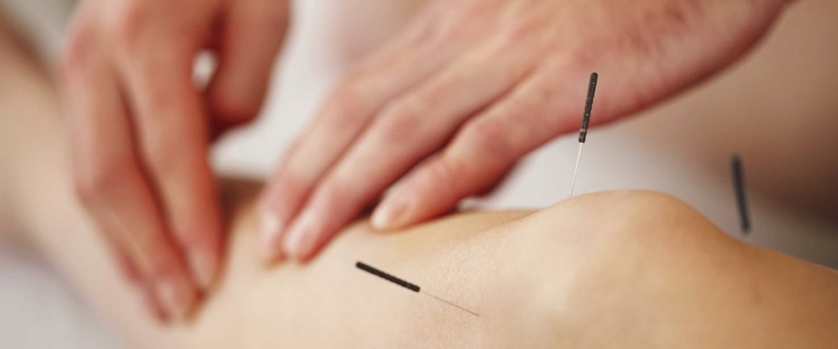 difference-between-dry-needling-and-acupuncture