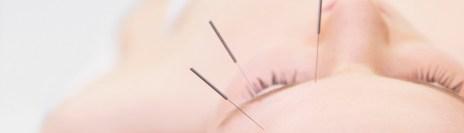acupuncture for glaucoma