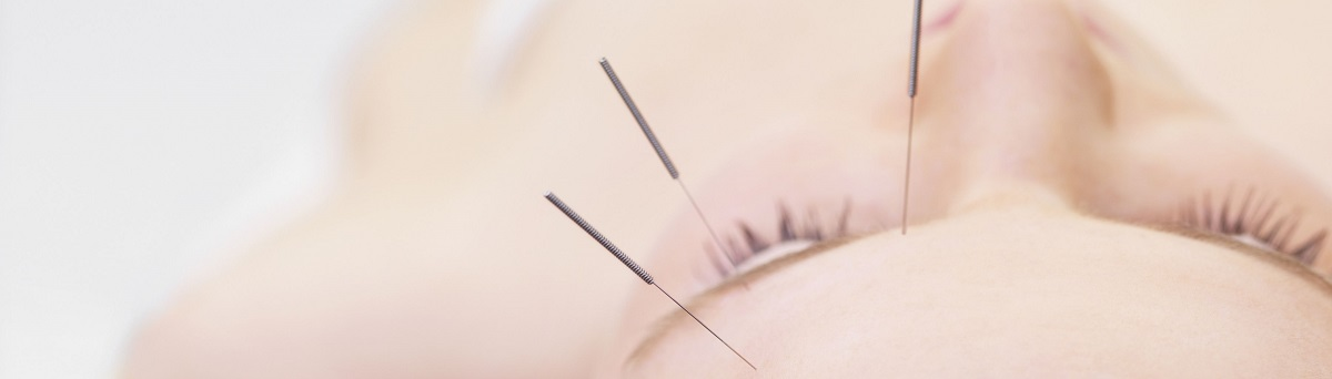 acupuncture for glaucoma