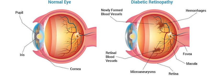 diabetic-retinopathy-symptoms