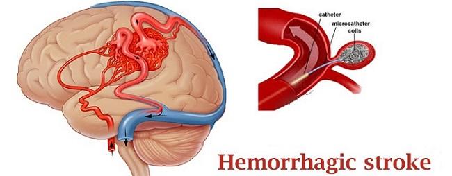 hemorrhagic-stroke-treatment