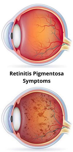 retinitis-pigmentosa-symptoms-