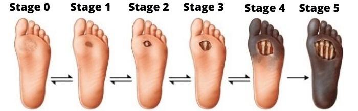 diabetic-foot-ulcer-treatment