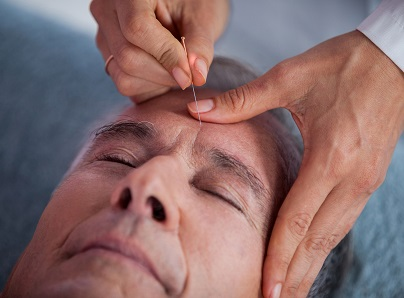 acupuncture for dementia