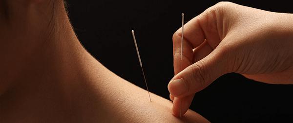acupuncture-for-frozen-shoulder