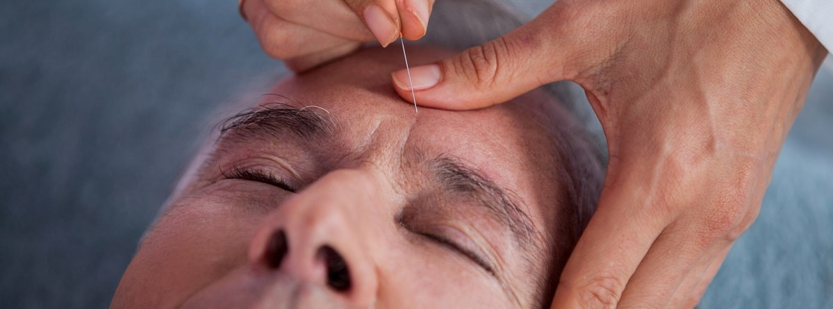 acupuncture-for-parkinsons