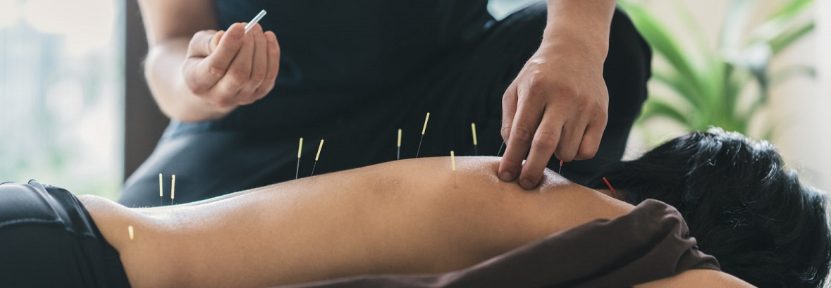 acupuncture-for-sciatica