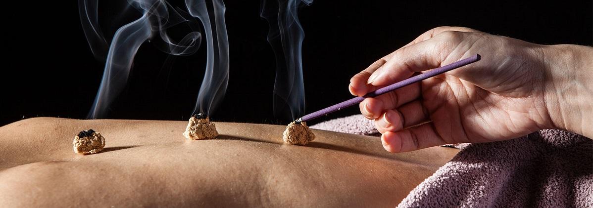 moxa-acupuncture
