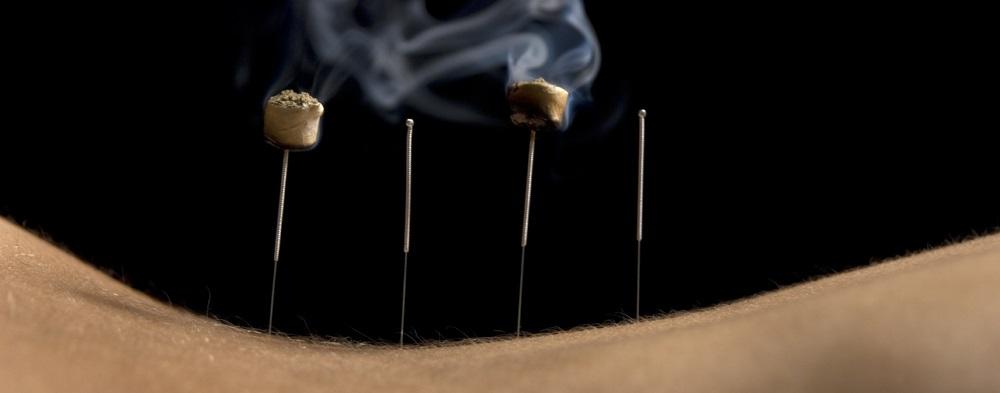 moxibustion-acupuncture