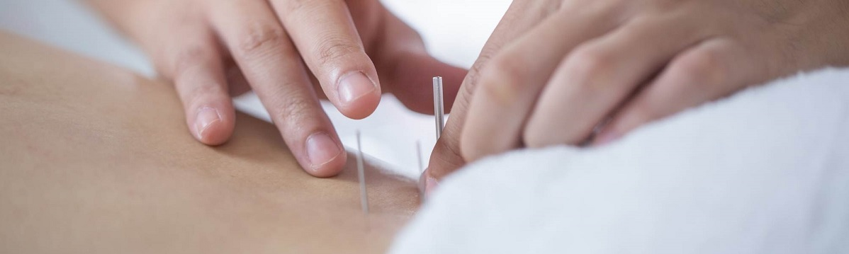 acupuncture-for-hormone-balance