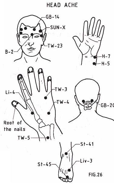 acupuncture-for-migraine-relief