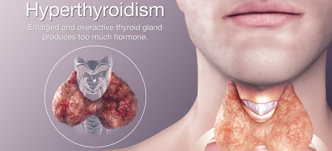 hyperthyroidism-natural-treatment