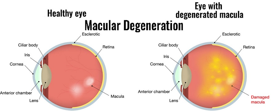 macular-dystrophy-types