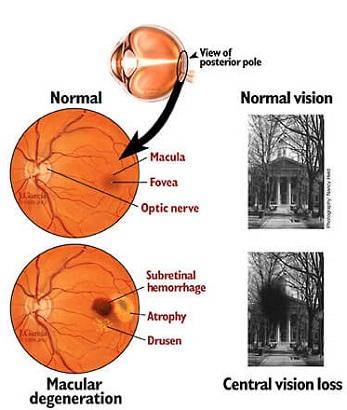 macular-dystrophy-vs.-macular-degeneration