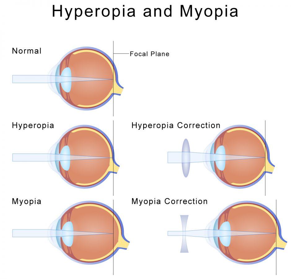 myopia-alternative-treatment