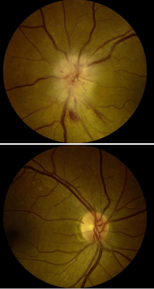 non-arteritic-ischemic-optic-neuropathy-treatment
