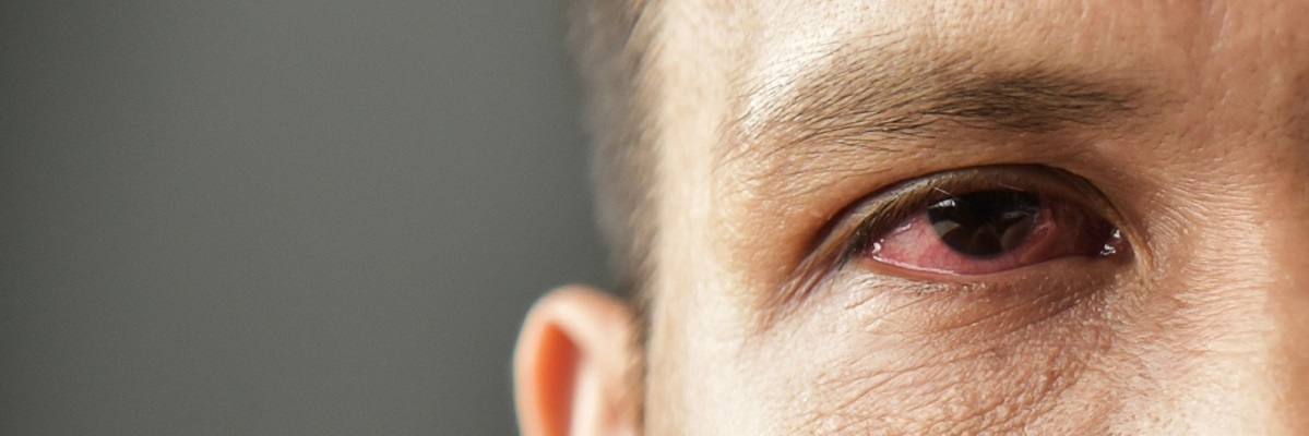 stargardt-eye-disease