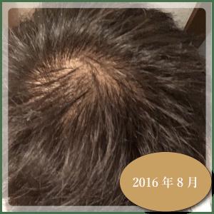 銀クリ治療ー6ヶ月2