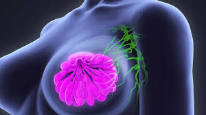 Breast cancer prevention: How to reduce your risk