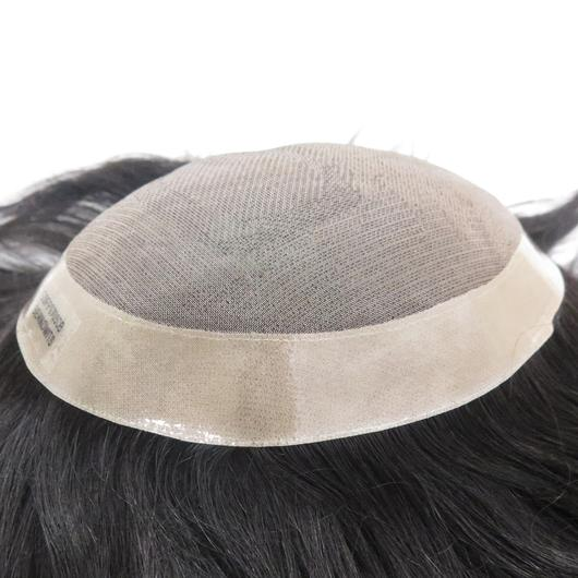 Non-Surgical Hair Replacement NewHairLine