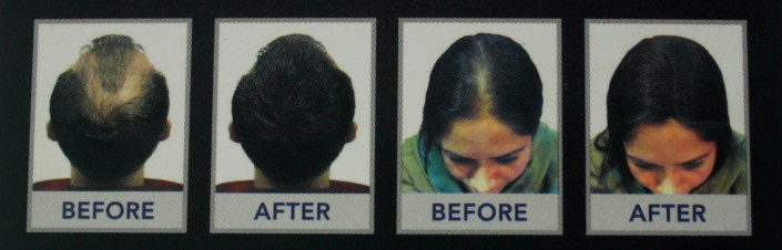 Super Million Hair Get Rid Of Balding and Thinning Spots in Just 30 Seconds!