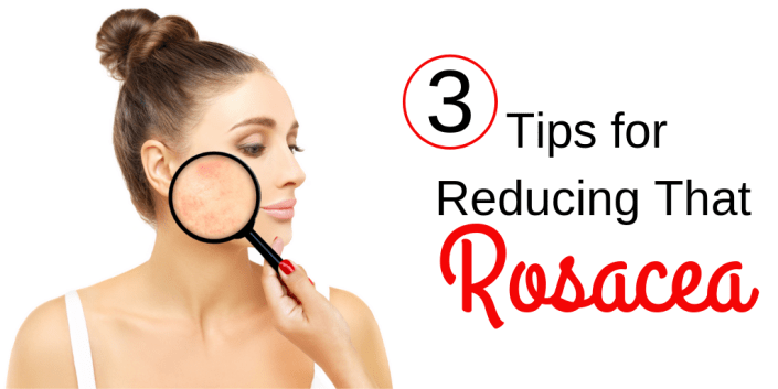 Top 3 Tips for Reducing That Rosacea