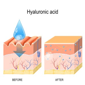 Hyaluronic acid illustration showing moisture in the skin