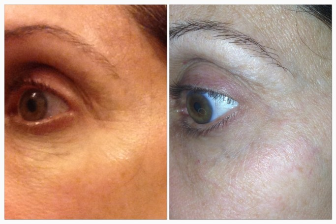 Rodan and Fields Acute Care Before and After picture
