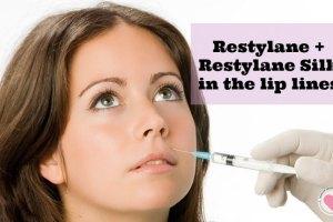 retylane silk for lip lines