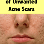 get rid of acne scars now