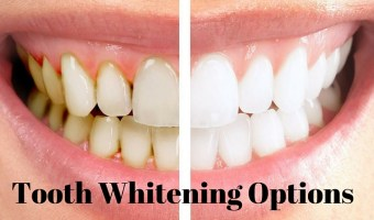 Shine Bright Like A Diamond: 4 Teeth Whitening Options