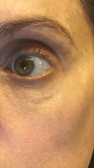 refresh pm eye serum results