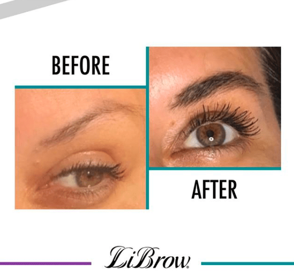 before and after LiBrow