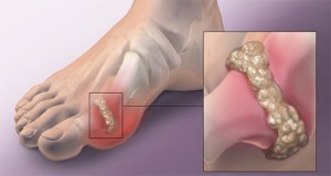 How To Cure Gout At Home
