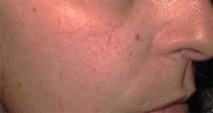 How to Heal Broken Capillaries Naturally